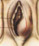 Киста бартолиновой железы проявляется припухлостью в основании половых губ,